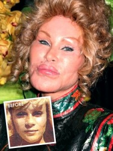 Jocelyn and Wildenstein with her cat-like look