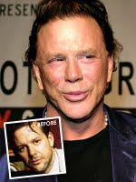 This is Mickey Rourke and the fact that when you get old, bad plastic surgery occurs